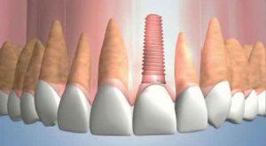 dental-implant-animation